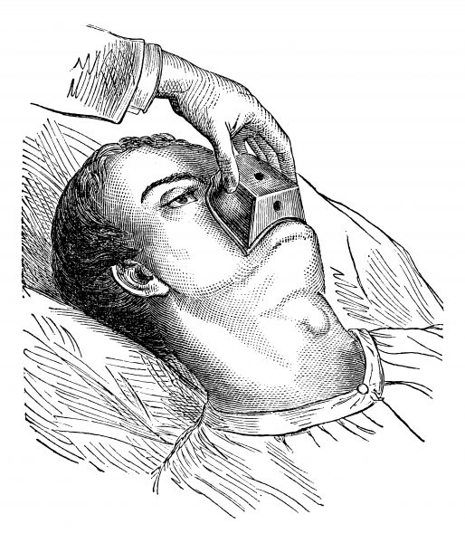 Chloroform being used as an anaesthetic drawing from 1875